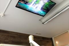 Zahnarzt-TV-Behandlung-Deckenmontage-Thun-2